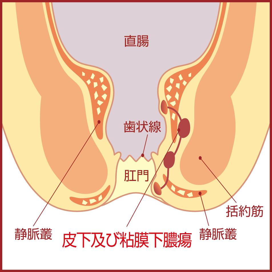 切れ痔が悪化すると刃物で肛門をえぐられるような痛みに悩まされ、肛門が狭くなってしまう肛門狭窄(こうもんきょうさく)という症状に発展する場合もある