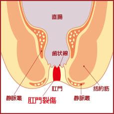 切れ痔は排便時に激しい痛みを伴う症状
